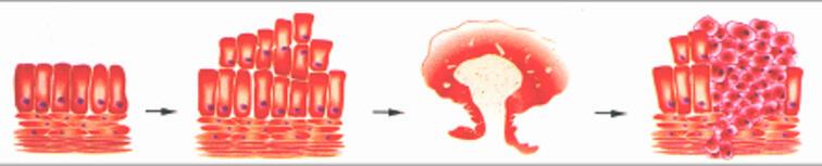 anal krebs prognose